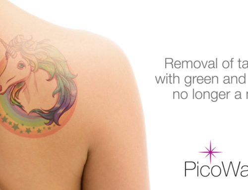 PicoWay 785nm handpiece removes green, blue, and purple tattoo ink